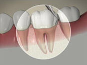 ID Dental - About Periodontal Disease
